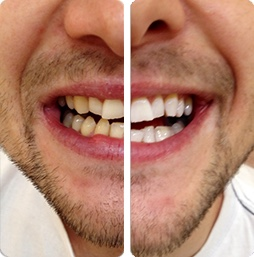 PureSmile Treatment Results Example