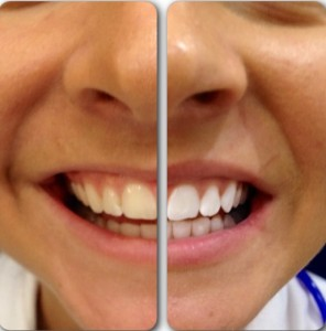 Before And After Teeth Whitening (1)