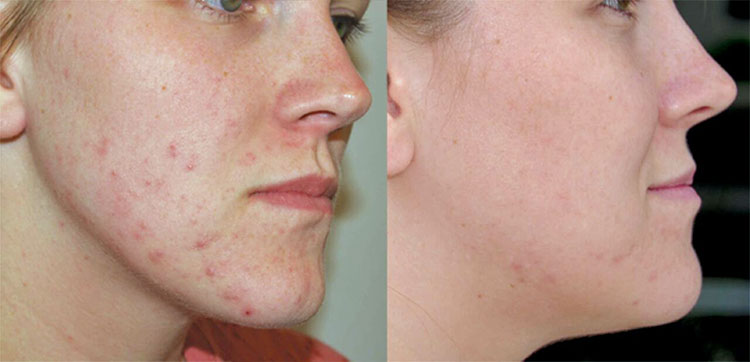 Best Acne Scar Treatments Or Home Remedies Puresmile