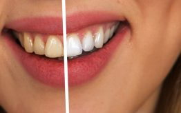 Teeth Whitening - Before and After Treatment